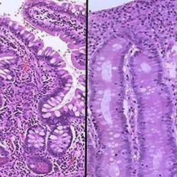 Enfermedad celíaca: Diagnóstico inmunológico y patologías asociadas