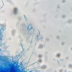 Micología práctica: herramientas para toma de muestras, siembra y preparación de medios de cultivo artesanales